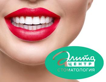 Создание сайта для стоматологической клиники «Элита Центр»